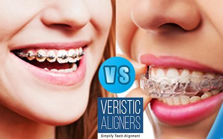 Veristic-aligners